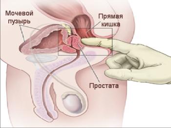простата массаж